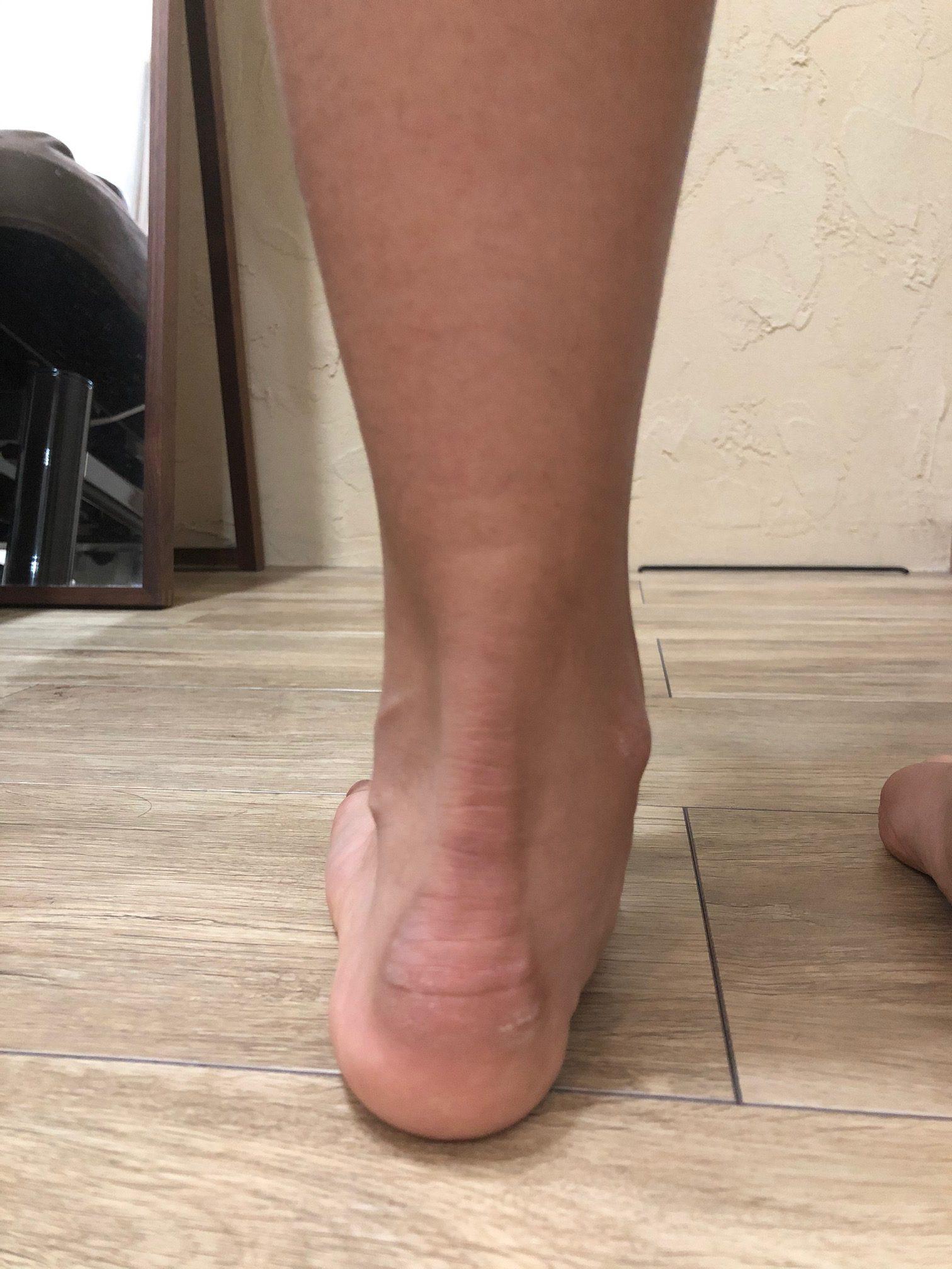 子供 足 の 裏 痛み